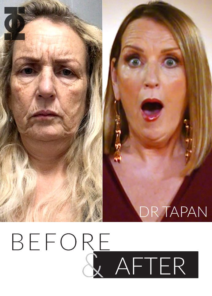 Beloved 10 Years Younger Treatment  - 10 years younger result phi clinic london 690x960 1 690x960
