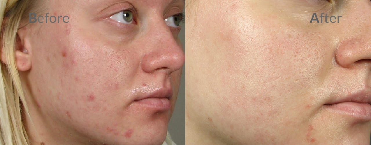 Safe and effective treatments - Acne Treatment Theraclear