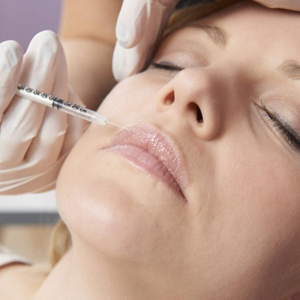 botox injections around mouth london