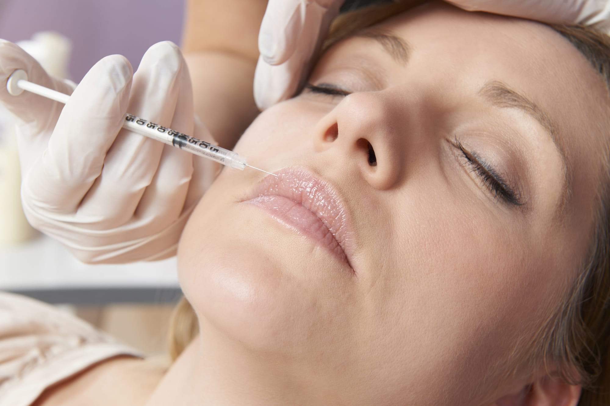 botox mouth injections