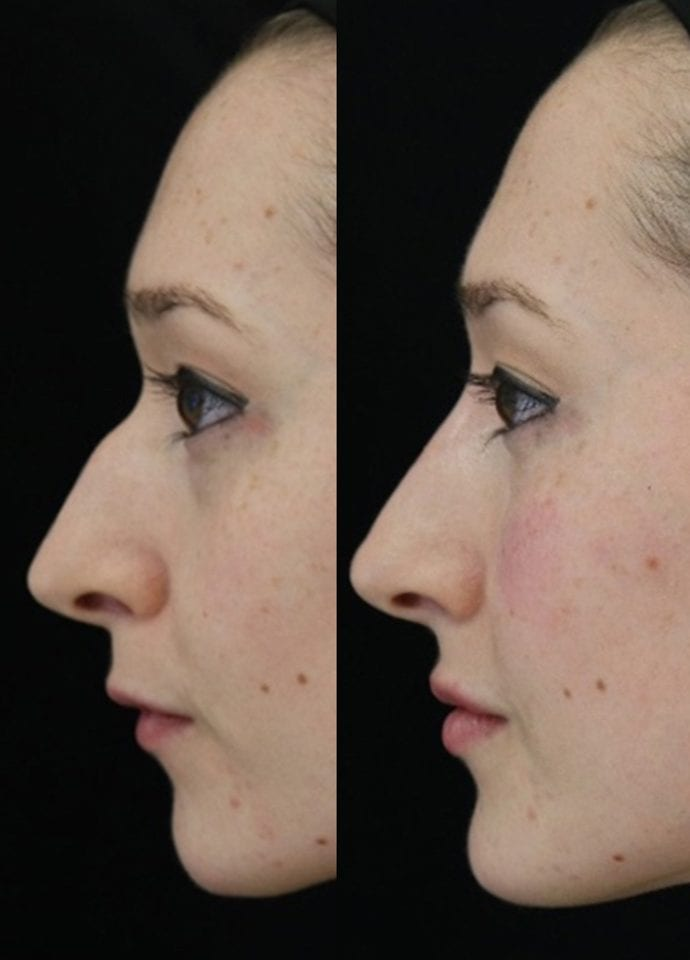 The bump on my nose : The follow up - Bump On My Nose Non Surgical Nose Reshaping 690x1035 690x960