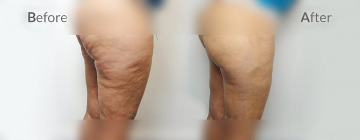 cellulaze before and after 012b