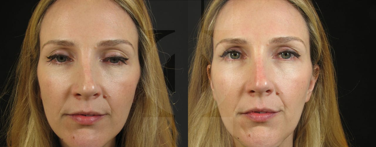 non surgical rhinoplasty london