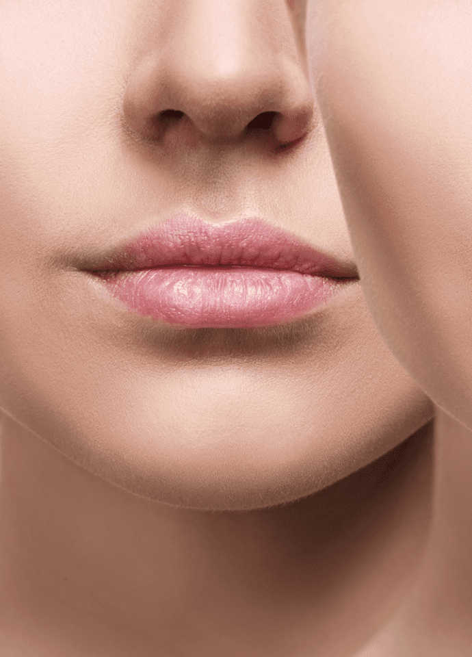 Lip filler products - factors to consider - Lip Fillers Heal treatment london 690x960