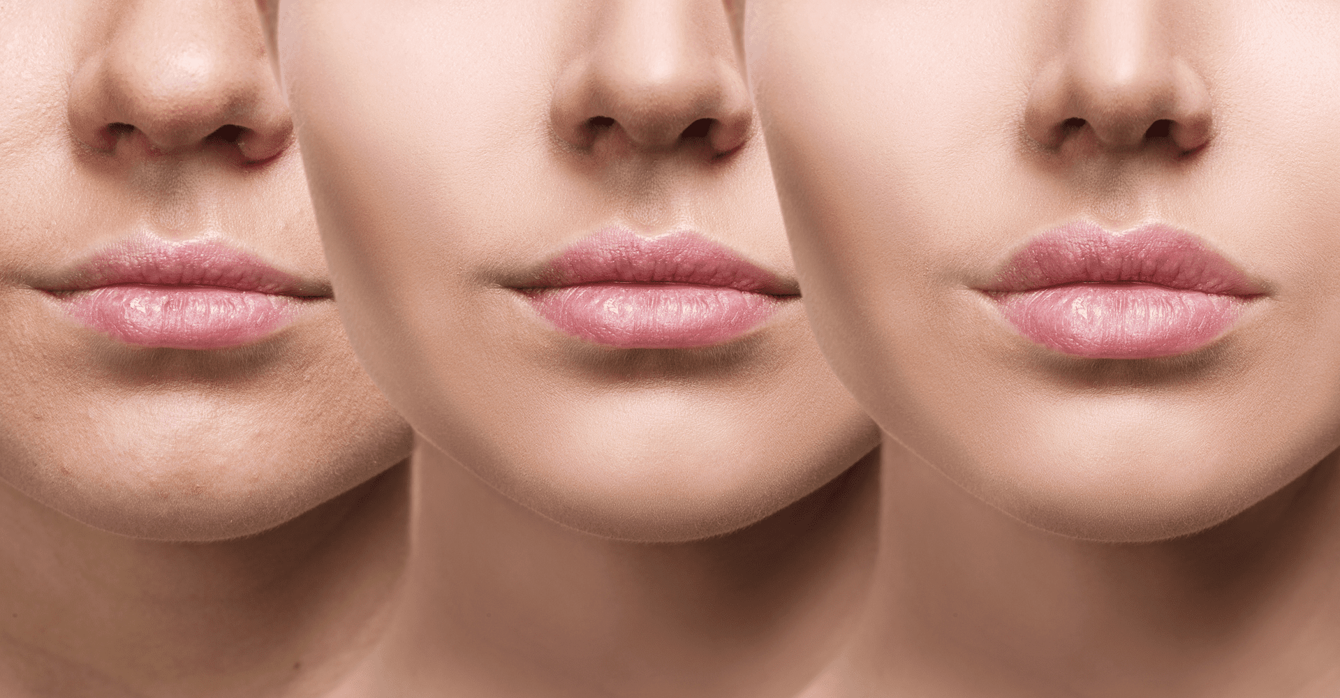 How Quickly Do Lip Fillers Heal? | PHI Clinic London