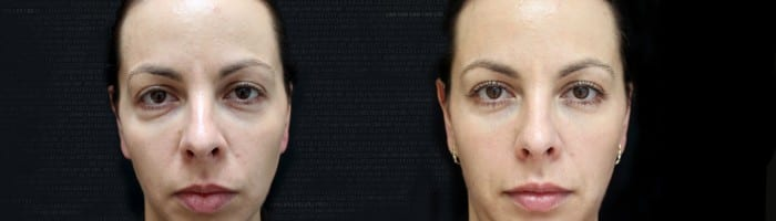 face fillers before and after