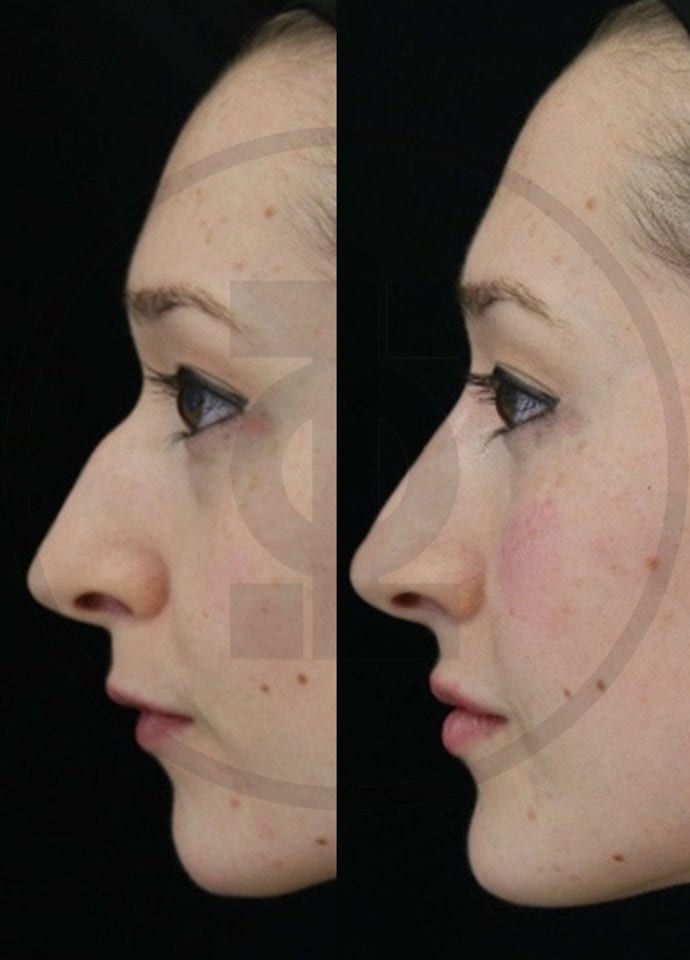 Dermal Fillers - Nose Non Surgical Nose Reshaping 690x960