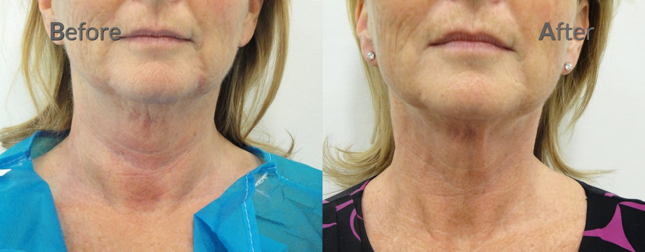 Highly Experienced Practitioners - Precision TX laser lipo neck skin tight 001c