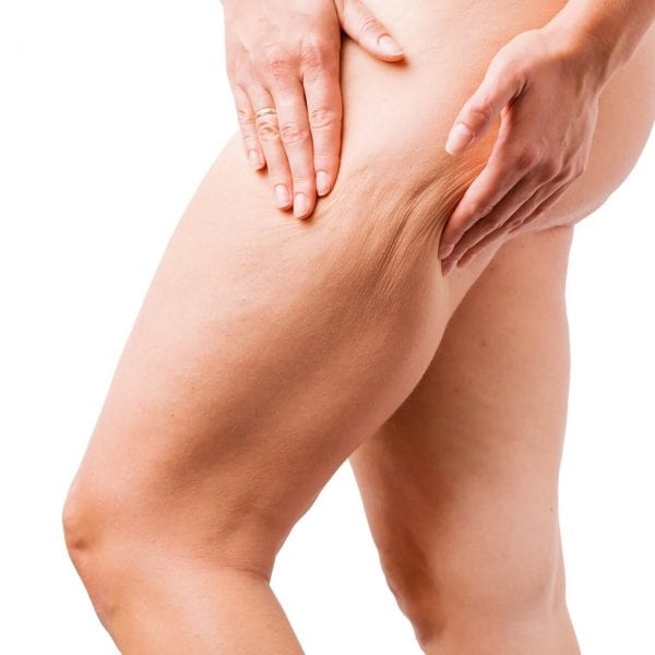 Removing-cellulite-PHI-Clinic-London 1920 x 1280