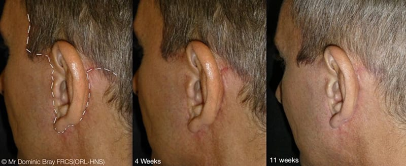 Scarring after facelift surgery
