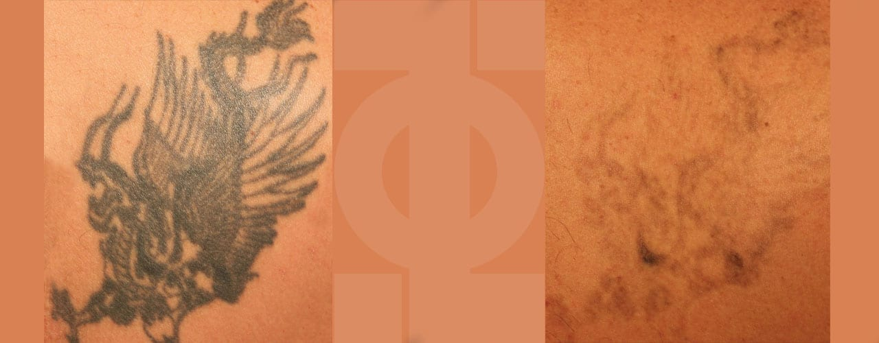 Cost of tattoo removal london harley street phi for How much does tattoo removal cost