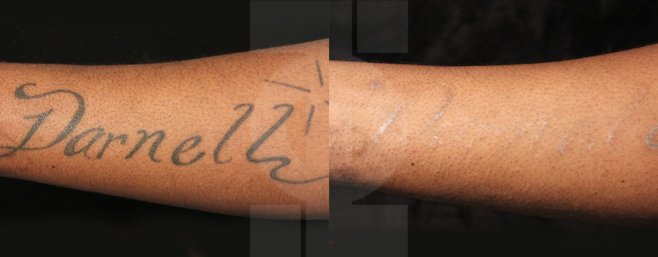 How does tattoo removal work phi clinic london for Tattoo removal clinic