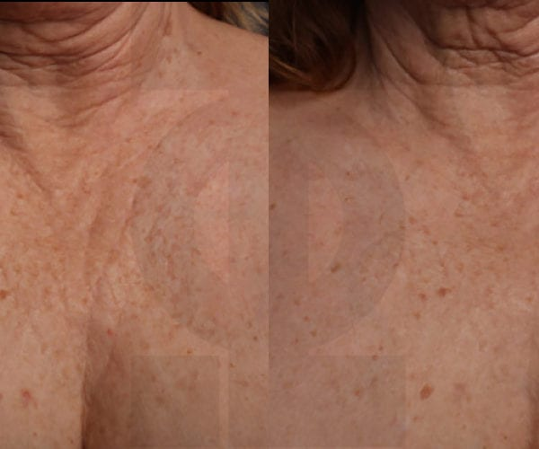 Ultherapy-chest-02-1