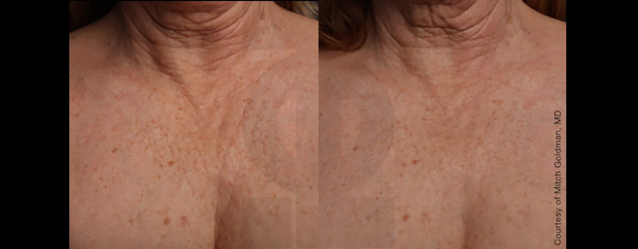Ultherapy-chest-02