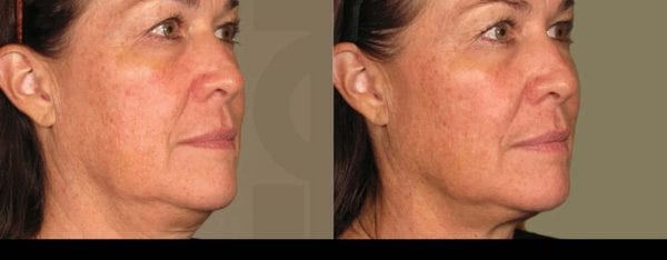 Ultherapy before and after treatment image 1
