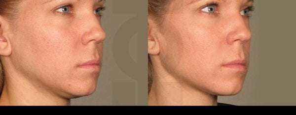 Ultherapy6
