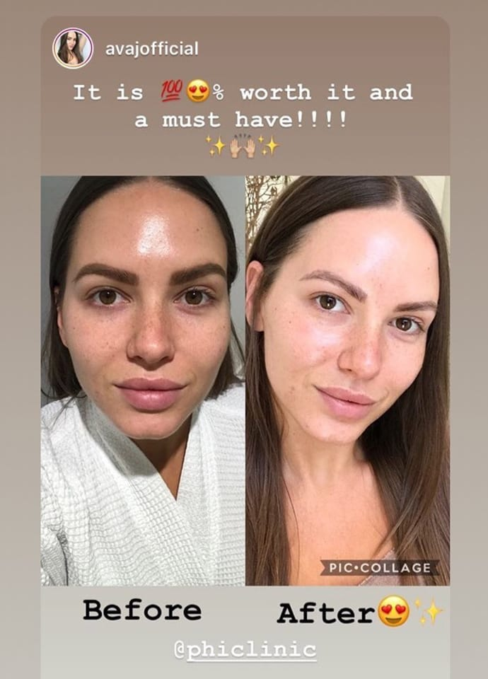 Beauti-PHI Peel Questions : results and aftercare - beauty phi peel frequently asked questions phi clinic london 690x960