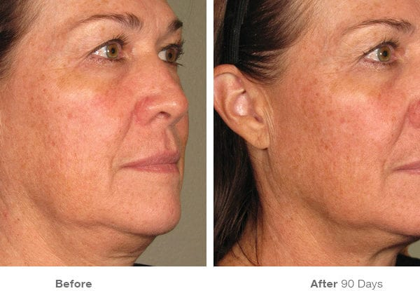 before_after_ultherapy_results_full-face image 2