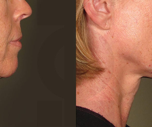 ultrasound-before_after_ultherapy_results_under-chin image 1