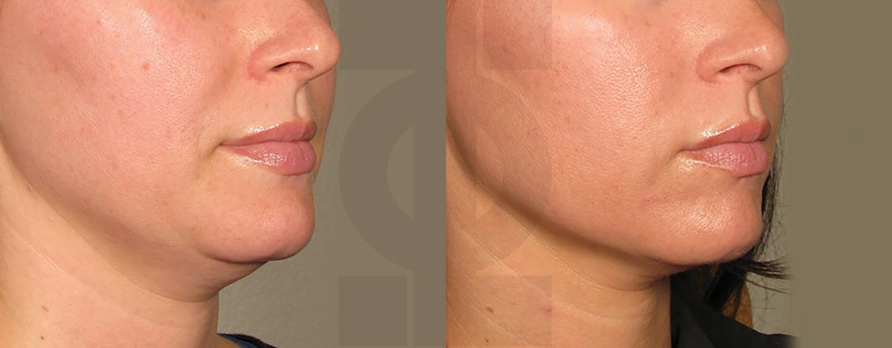 Who Will Perform My Treatment? - before_after_ultherapy_results_under chin18 2