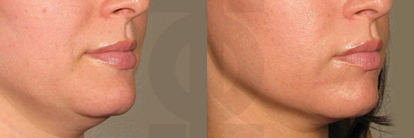 before_after_ultherapy_results_under-chin18-700x200-1