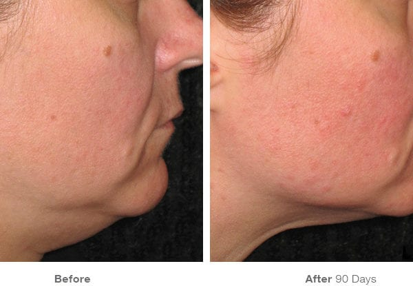 before_after_ultherapy_results_under-chin34-1