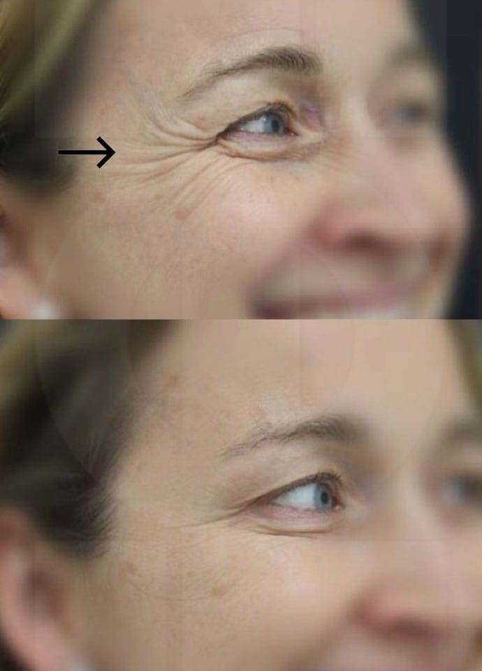 What Causes Crow's Feet Wrinkles? - best crows feet botox treatment london 690x960