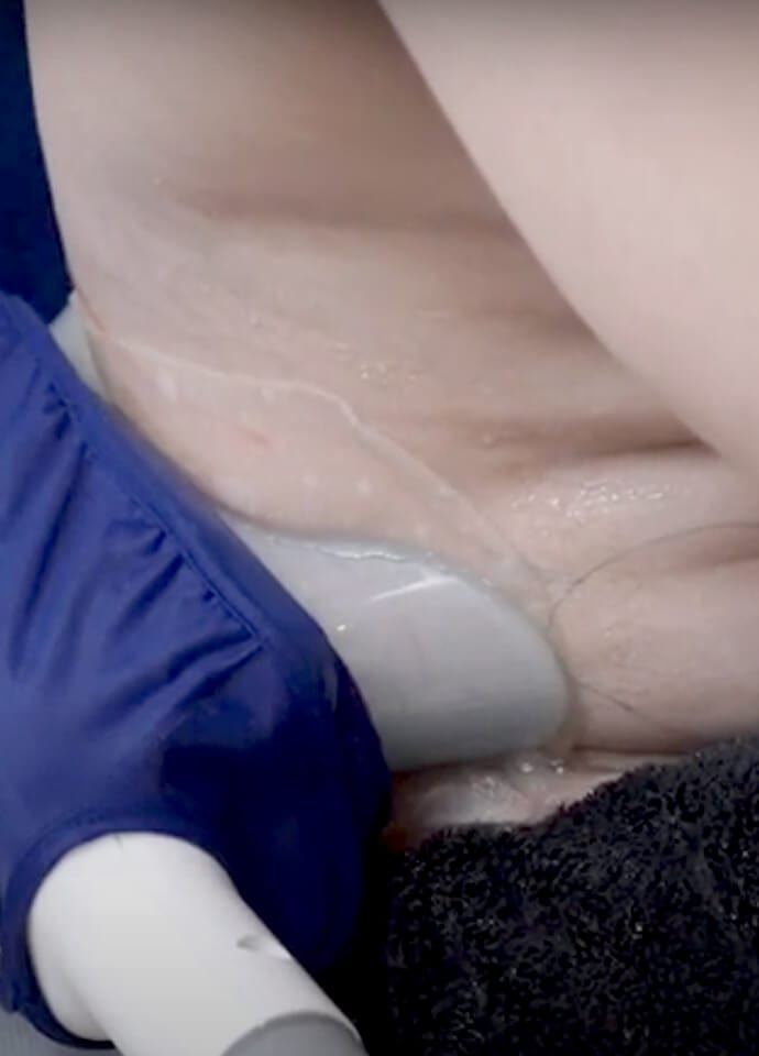 Where can CoolSculpting be applied? - best fat reduction treatment london 690x960 2