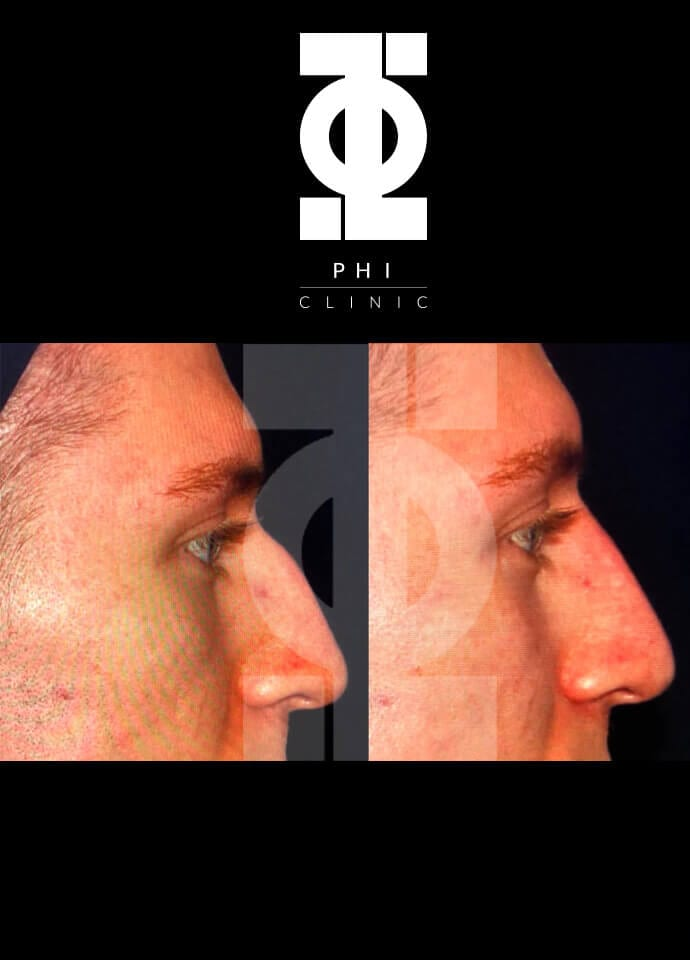 Who will treat me for a bump on the nose? - best male nose filler london 690x960