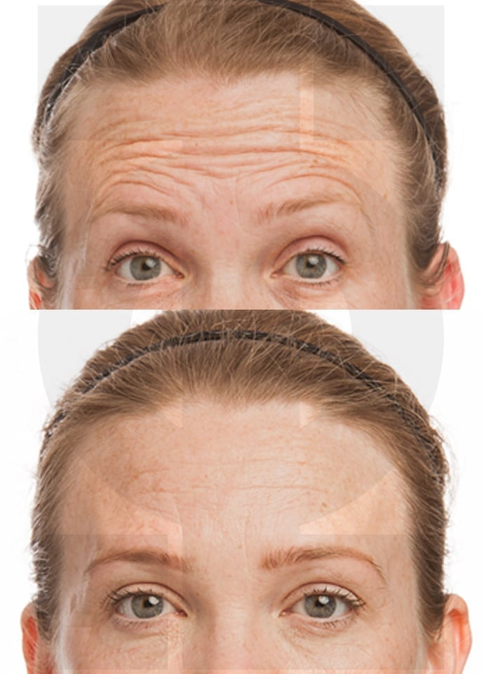 Botox In London  - botox before and after london 690x960 1