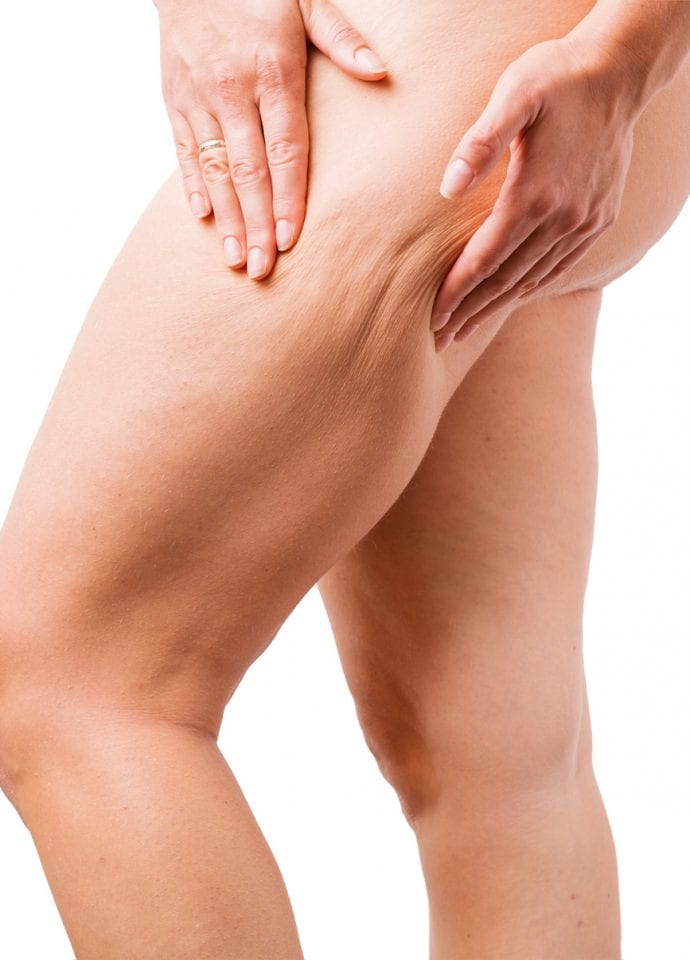 Is all cellulite the same? - cellulite cellfina treatment london 690x960