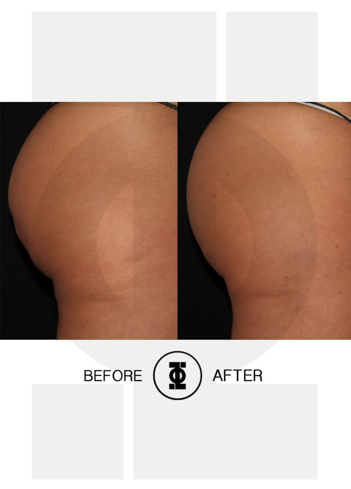 best cellulite treatment - cellulite results phi clinic 690x960