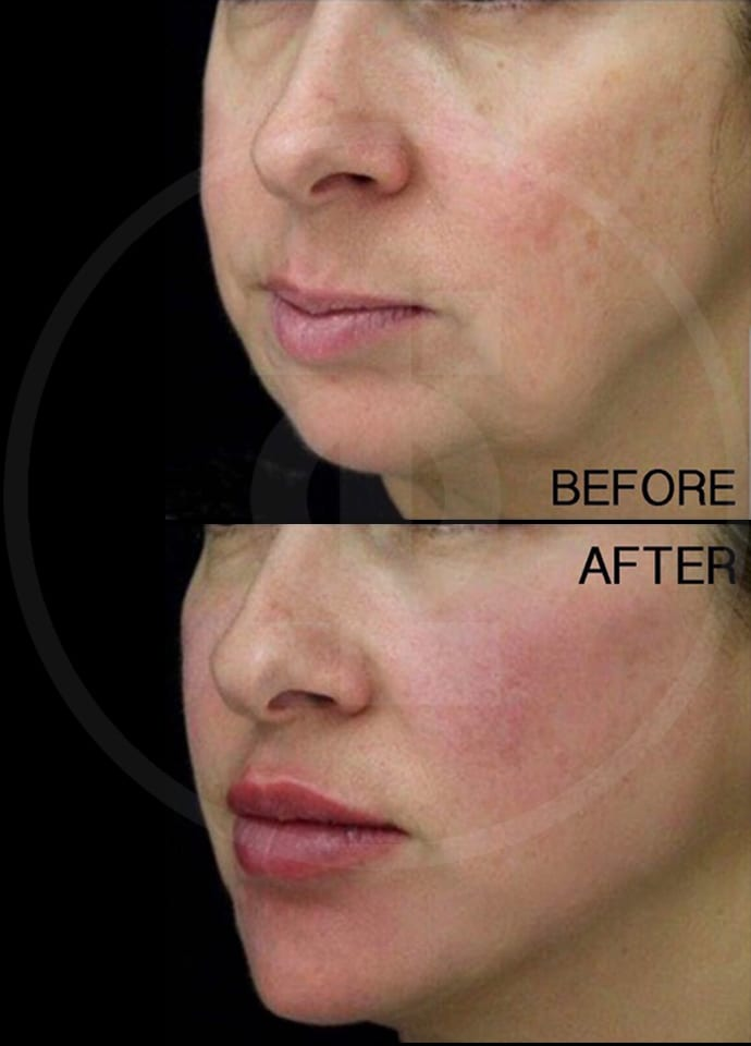 Non-Surgical Jawline Reshaping : Dermal Fillers - cheek fillers london enhancement