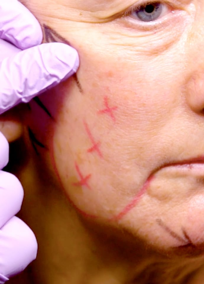 Cheek fillers for volume loss - cheek fillers london phi clinic 690x960
