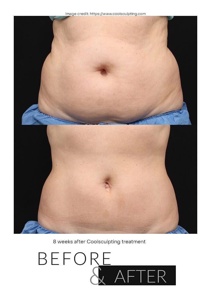 What Does Coolsculpting Cost At PHI Clinic? - coolsculpting before after london 690x960 1