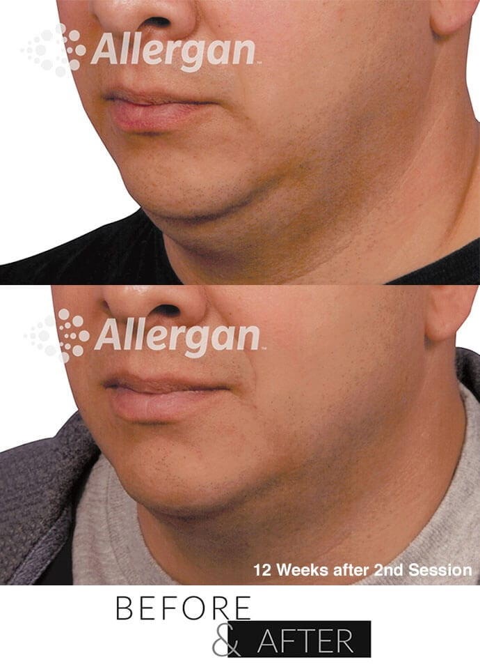 Causes of neck fat - coolsculpting mini neck fat results 690x960 1