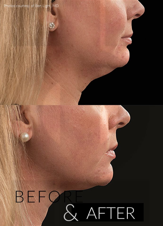 CoolSculpting Mini And Saggy Jowls - coolsculpting results jawline 690x960 1
