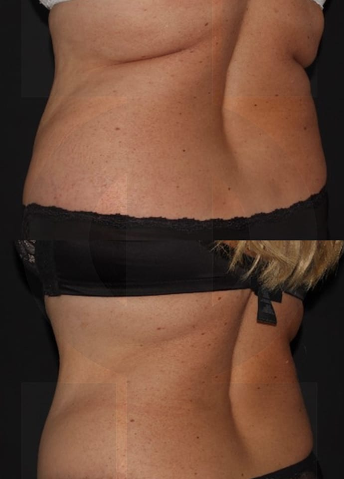 How Does Cryolipolysis Body Sculpting Work? - coolsculpting results london fat reduction cryolipolysis technology 690x960