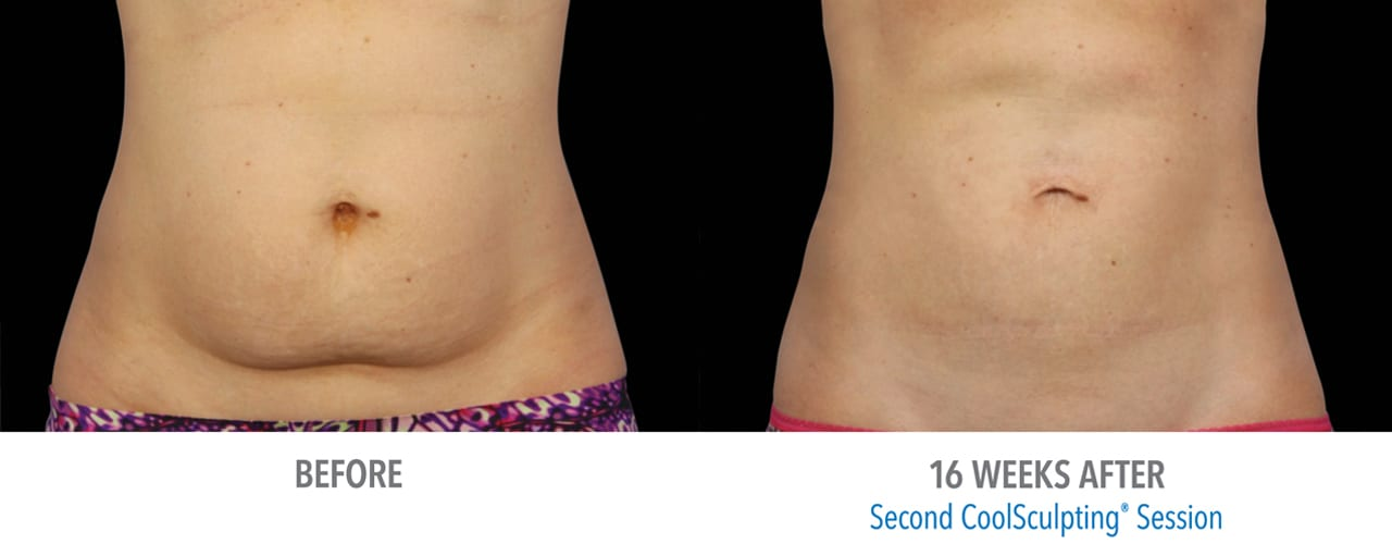 cryolipolysis coolsculpt belly