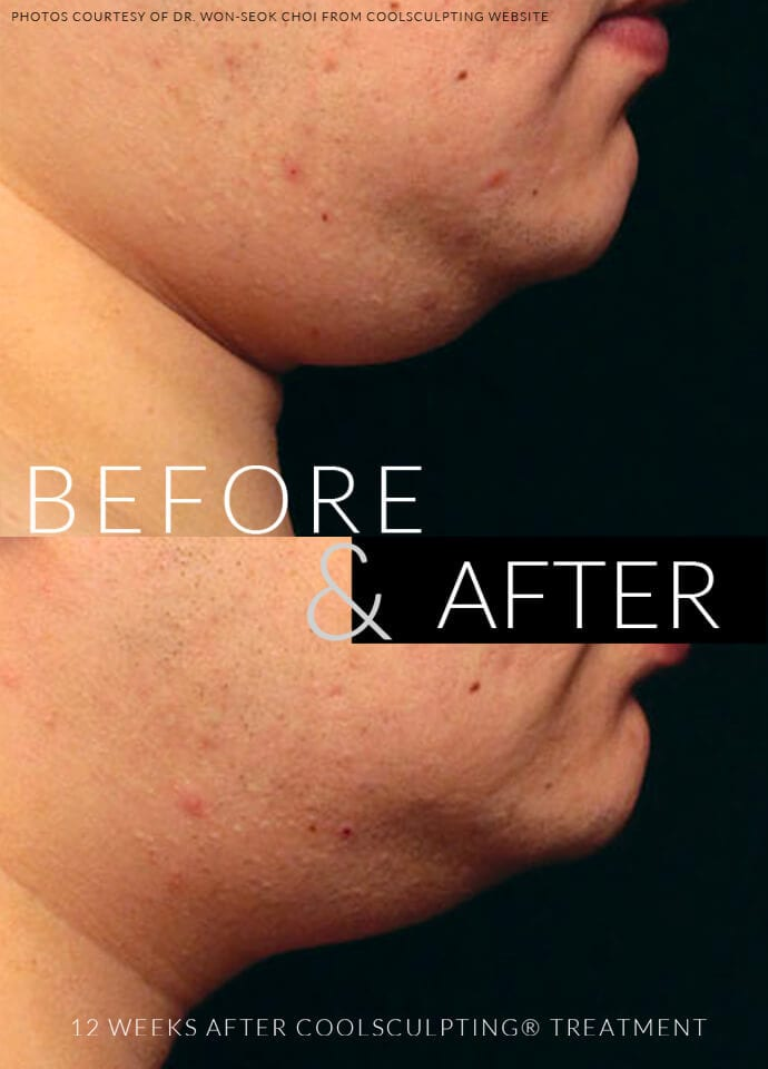Can a double chin be treated? - double chin treatment london 690x960 1 690x960