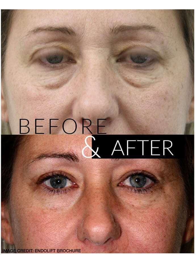 Endolift Results - endolift results london 690x960 1