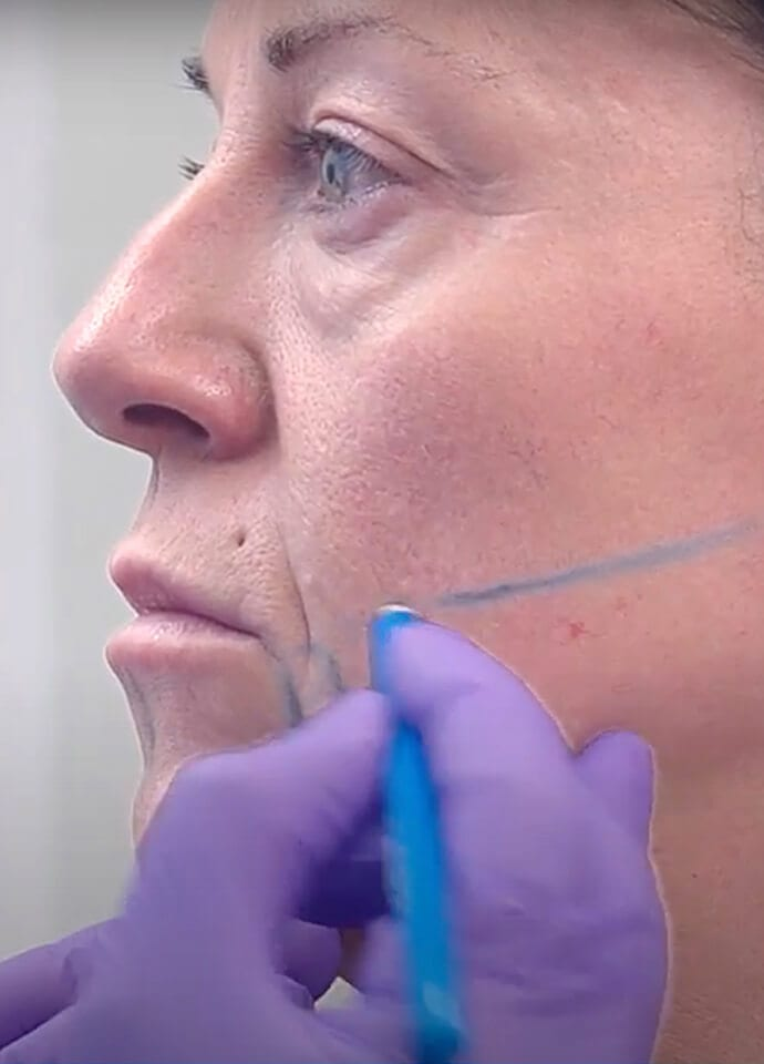 Highly Skilled Practitioners - endolift treatment practitioner 690x960 1
