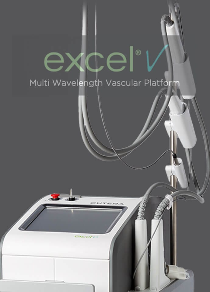 How We Treat Redness At PHI Clinic - excelv treatment phi clinic london 690x960 1