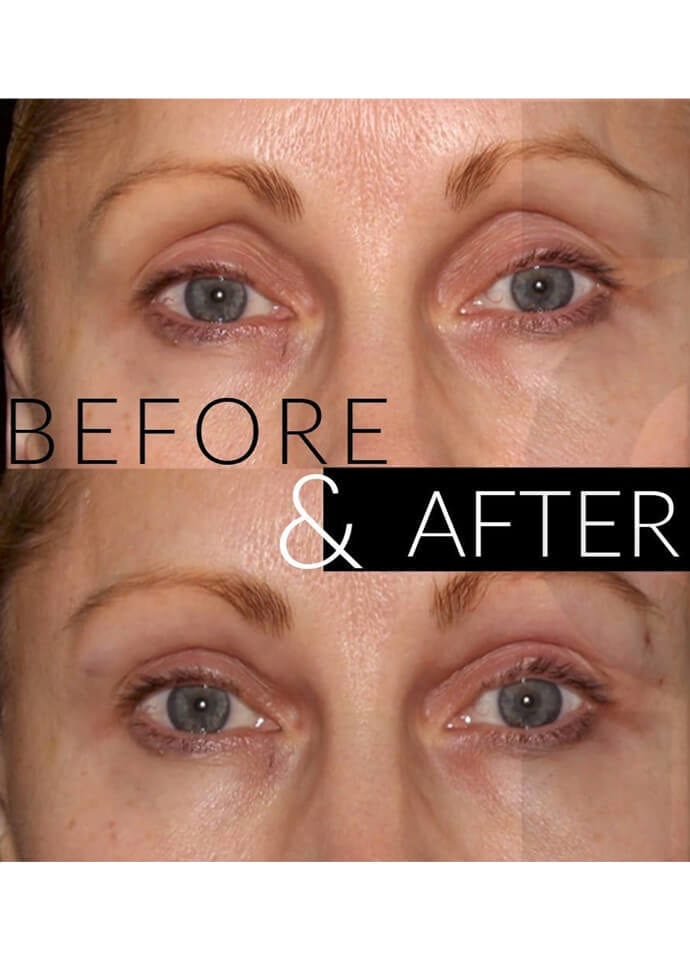 What Is The Best Filler For Hollow Eyes? - eye filler treatment london 690x960 1 690x960