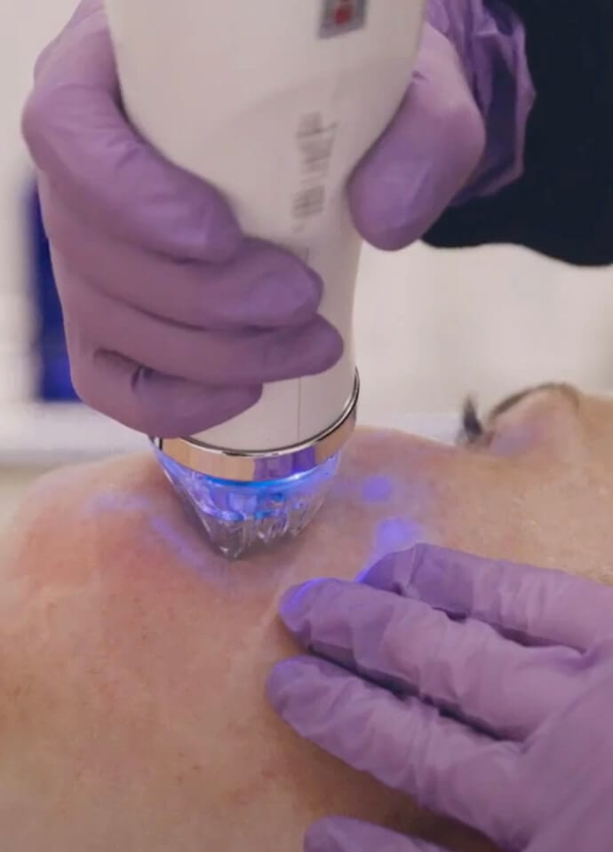 Factors To Consider - face veins treatment device london 690x960 1 690x960
