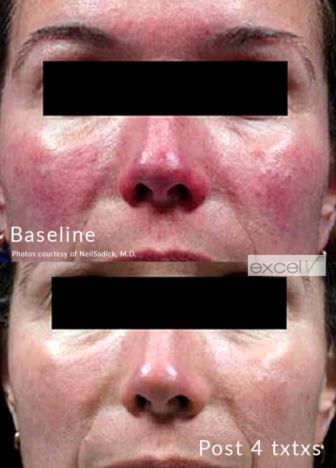 How We Treat Face Veins at PHI - face veins treatments phi clinic london 690x960 1