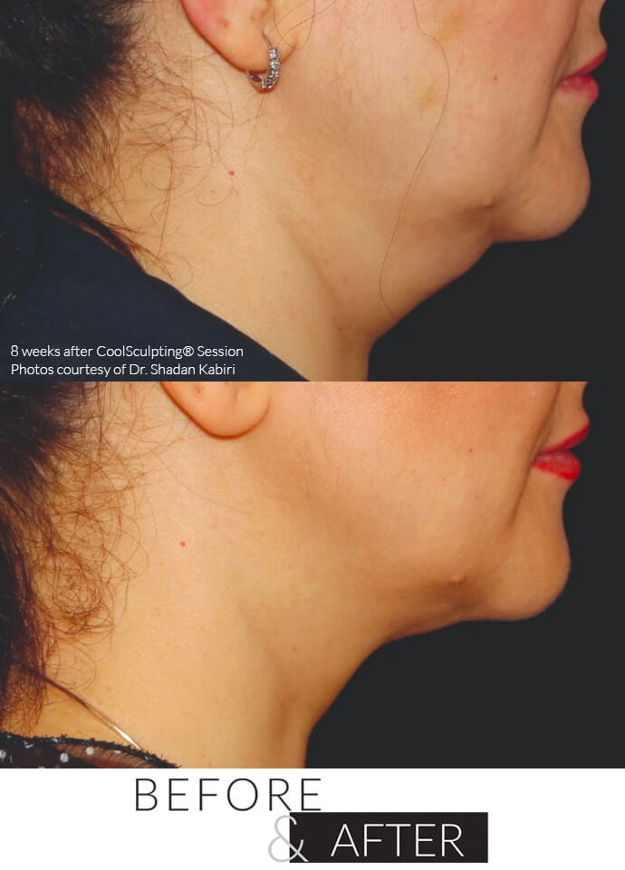 If I've Had CoolSculpting®, Can I Eat What I Want?  - fat freezing removal london 690x960 1 690x960