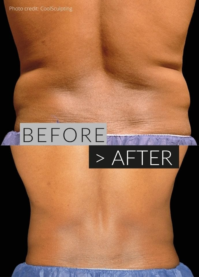 How Does Fat Freezing Work?  - fat freezing with CoolSculpting 690x960 1 690x960