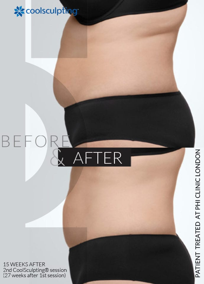Why Non Surgical Liposuction - fat reduction and skin tightening 690x960 1 690x960