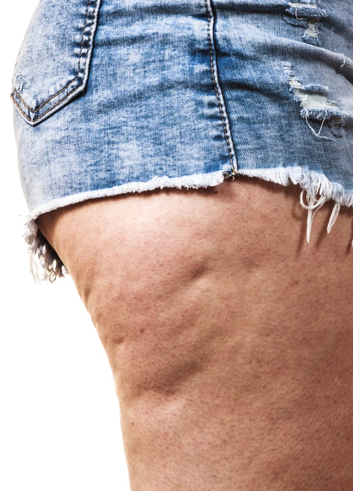 What Causes Cellulite? - fda approved cellulite 690x960